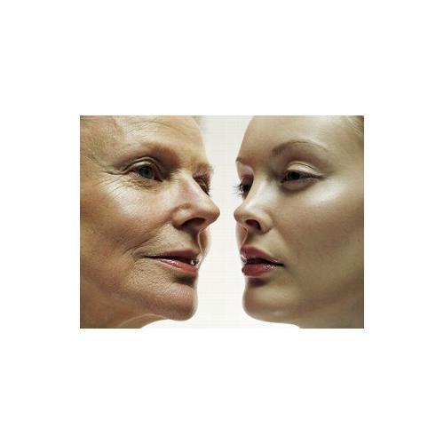 Normal_wrinkles