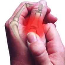 Thumb_reumatism-1