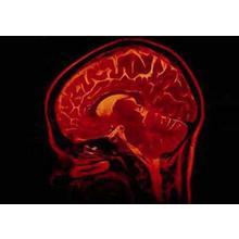 Thumb_brain_active
