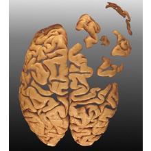 Thumb_alzheimer_brain_welcomeacuk